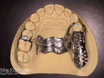 后牙缺失治疗 后牙游离缺失的铸造卡环选择